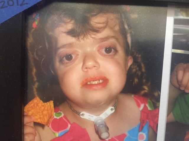 craniofacial vegan treacher collins syndrome muskegon girl with
